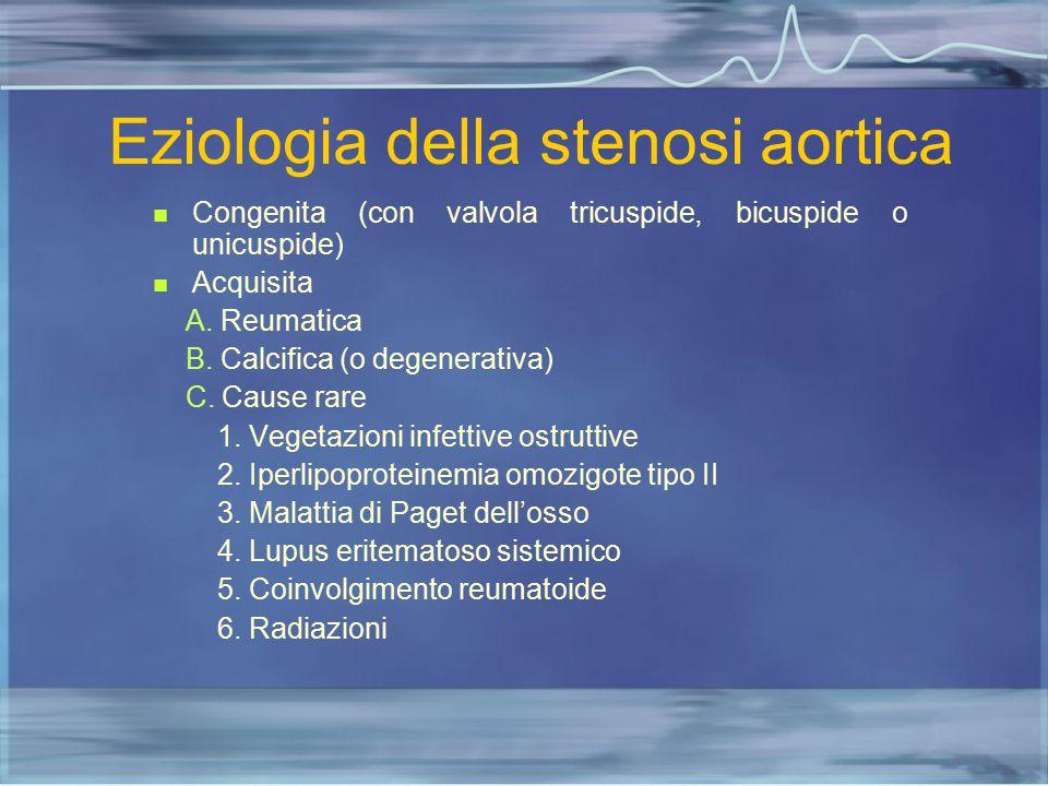 Eziologia della stenosi aortica Congenita (con valvola tricuspide, bicuspide o unicuspide) Acquisita A. Reumatica B. Calcifica (o degenerativa) C. Cau