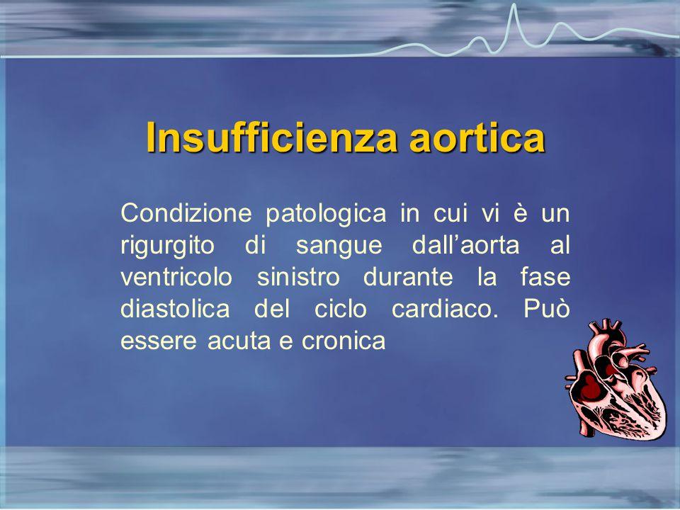 Insufficienza aortica Condizione patologica in cui vi è un rigurgito di sangue dall'aorta al ventricolo sinistro durante la fase diastolica del ciclo