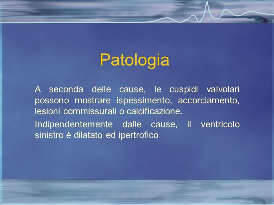 Patologia A seconda delle cause, le cuspidi valvolari possono mostrare ispessimento, accorciamento, lesioni commissurali o calcificazione. Indipendent