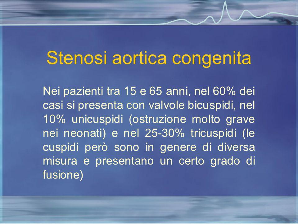 Stenosi aortica congenita Nei pazienti tra 15 e 65 anni, nel 60% dei casi si presenta con valvole bicuspidi, nel 10% unicuspidi (ostruzione molto grav