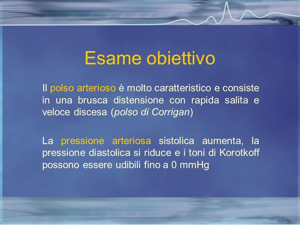 Esame obiettivo Il polso arterioso è molto caratteristico e consiste in una brusca distensione con rapida salita e veloce discesa (polso di Corrigan)