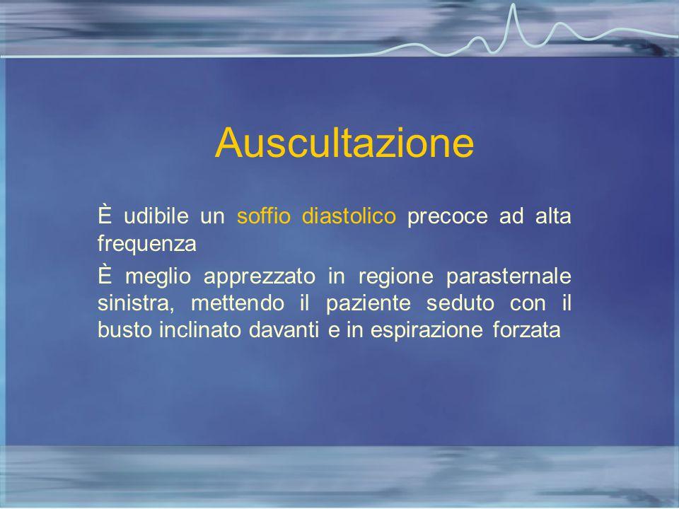 Auscultazione È udibile un soffio diastolico precoce ad alta frequenza È meglio apprezzato in regione parasternale sinistra, mettendo il paziente sedu