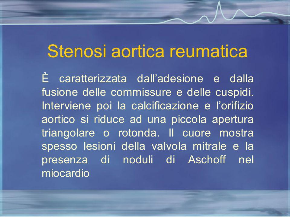 Stenosi aortica reumatica È caratterizzata dall'adesione e dalla fusione delle commissure e delle cuspidi. Interviene poi la calcificazione e l'orifiz