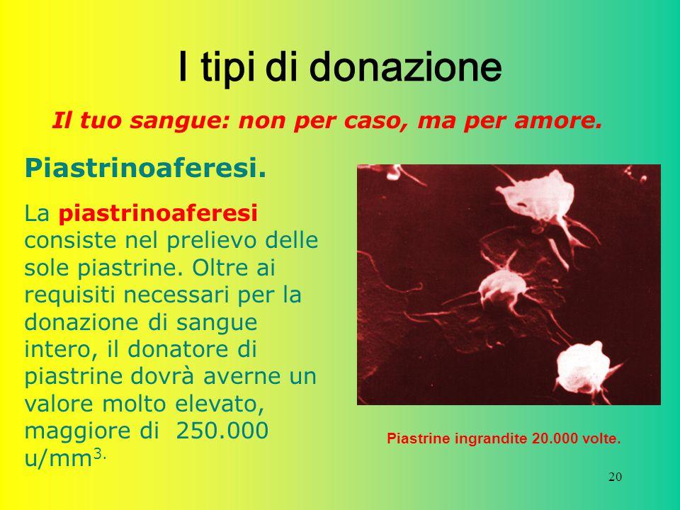 20 I tipi di donazione Il tuo sangue: non per caso, ma per amore. Piastrinoaferesi. La piastrinoaferesi consiste nel prelievo delle sole piastrine. Ol