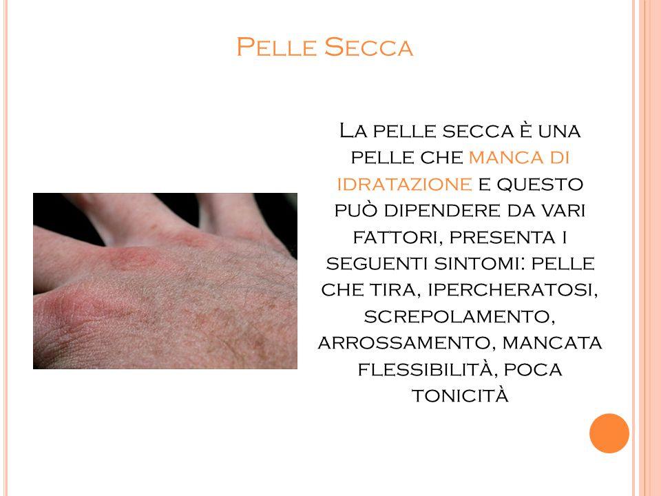 P ELLE S ECCA La pelle secca è una pelle che manca di idratazione e questo può dipendere da vari fattori, presenta i seguenti sintomi: pelle che tira,