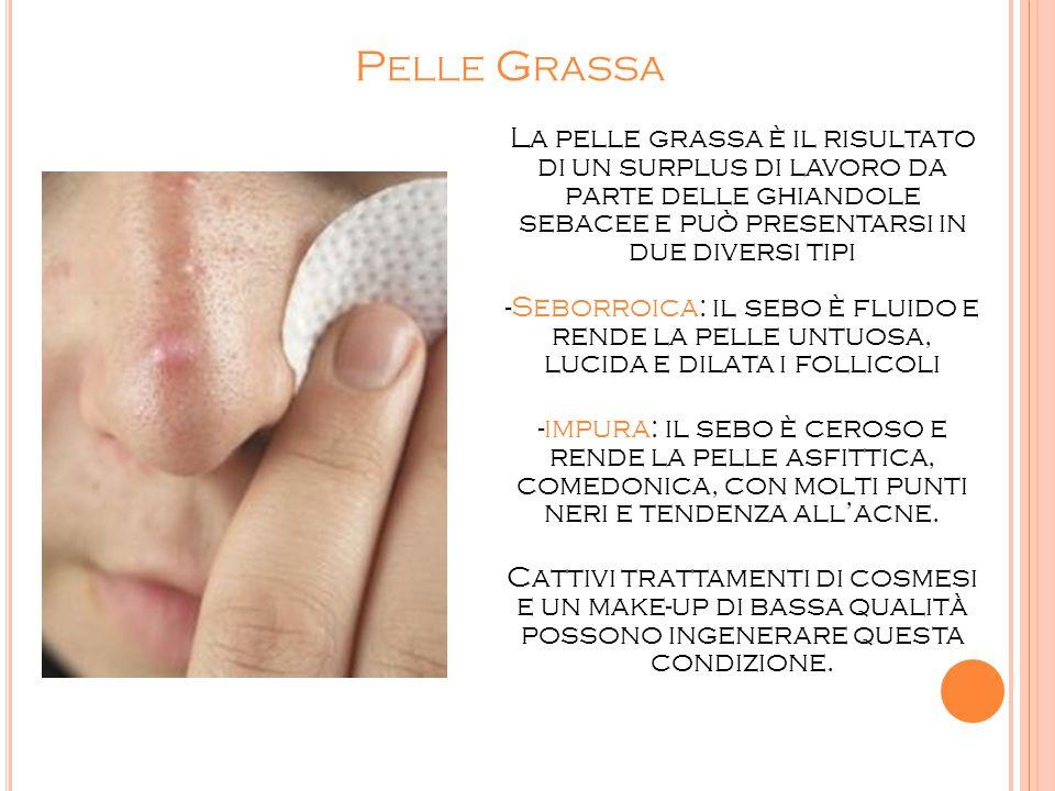 P ELLE G RASSA La pelle grassa è il risultato di un surplus di lavoro da parte delle ghiandole sebacee e può presentarsi in due diversi tipi -Seborroi