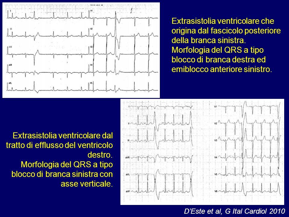 Extrasistolia ventricolare che origina dal fascicolo posteriore della branca sinistra. Morfologia del QRS a tipo blocco di branca destra ed emiblocco