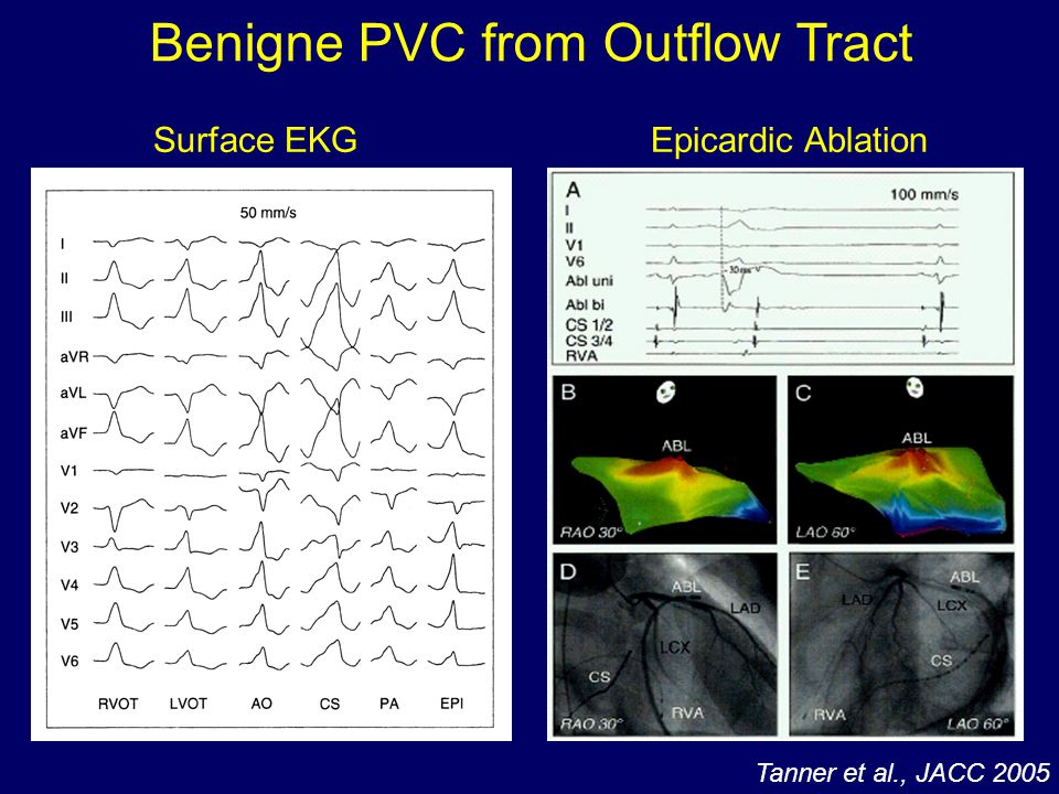 Benigne PVC from Outflow Tract Tanner et al., JACC 2005 Surface EKGEpicardic Ablation