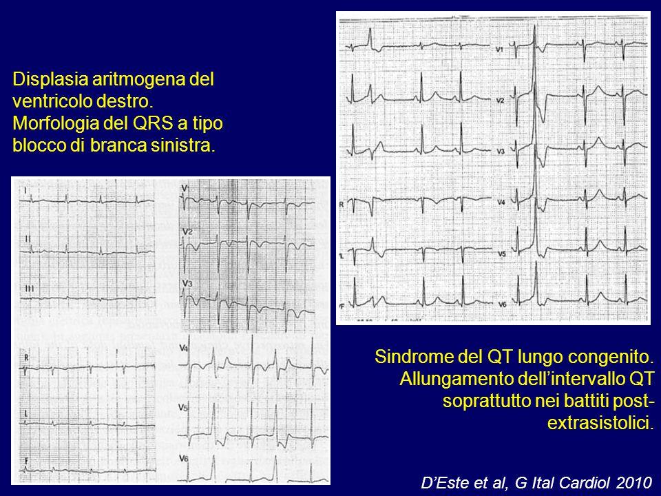 Displasia aritmogena del ventricolo destro. Morfologia del QRS a tipo blocco di branca sinistra. Sindrome del QT lungo congenito. Allungamento dell'in