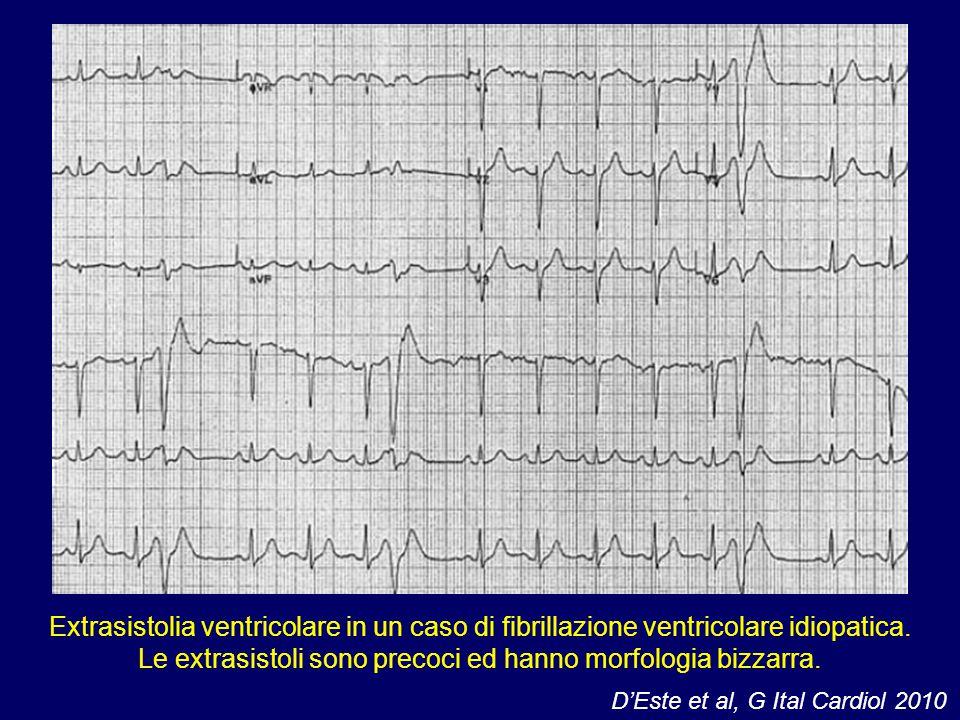 Extrasistolia ventricolare in un caso di fibrillazione ventricolare idiopatica. Le extrasistoli sono precoci ed hanno morfologia bizzarra. D'Este et a
