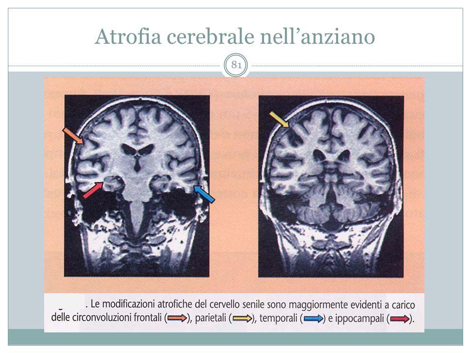 Atrofia cerebrale nell'anziano 81