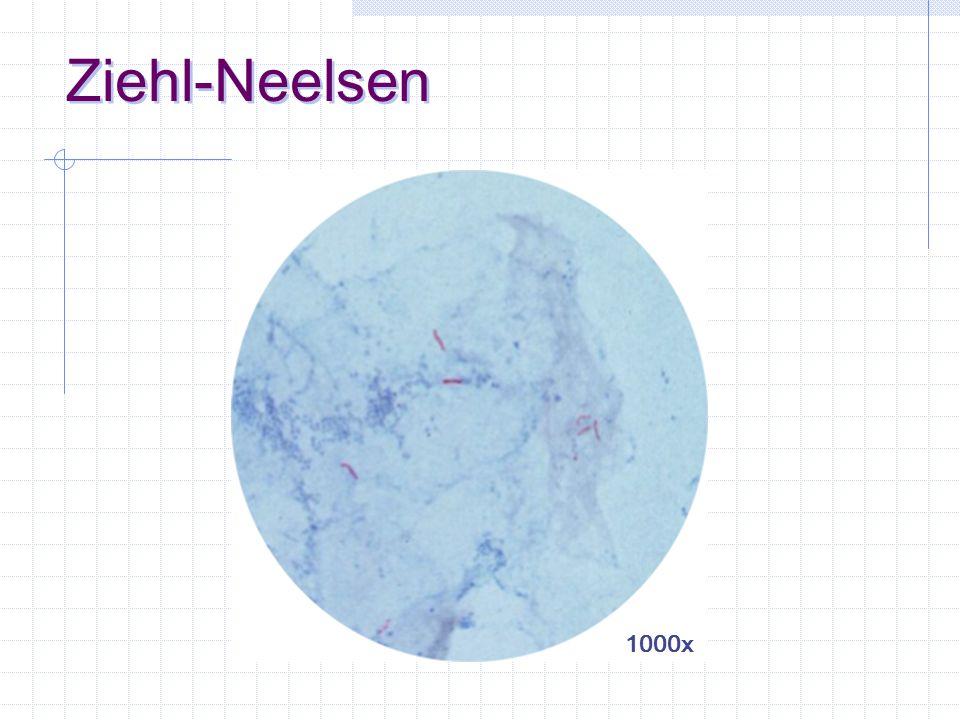 esame microscopico colorazione di Ziehl-Neelsen fluorescenza tecnica scarsamente sensibile e non specie-specifica