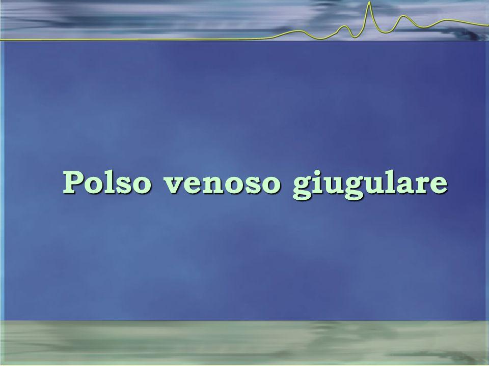 Polso venoso giugulare