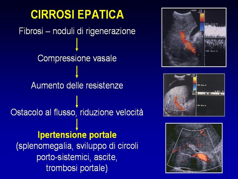 Andrea Stiatti Centro Diagnostico Medico Leonardo da Vinci - Firenze RUOLO ATTUALE DELL'ECOGRAFIA NELLO STUDIO DELLA PATOLOGIA DEL FEGATO RR