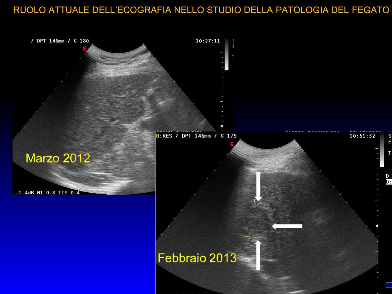 RUOLO ATTUALE DELL'ECOGRAFIA NELLO STUDIO DELLA PATOLOGIA DEL FEGATO RR LA SORVEGLIANZA IN PAZIENTE CIRROTICO SI FA CON ECOGRAFIA OGNI 4 MESI Andrea Stiatti Centro Diagnostico Medico Leonardo da Vinci - Firenze
