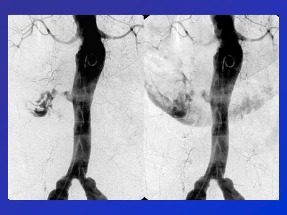 Reperti Angio-TC Stravaso di mdc nel lume del viscere Coaguli, assenti nelle scansioni basali Reperti secondari: - Enhancement parete viscerale - Ispessimento parete viscerale - Masse, polipi, tumori - Lesioni vascolari - Pseudoaneurismi