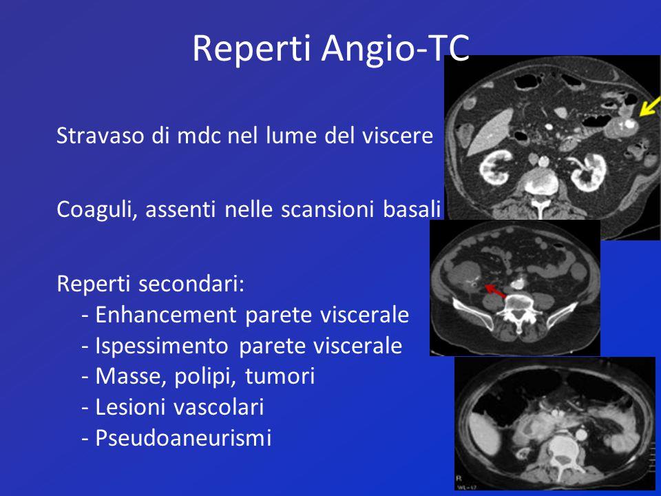 Valore diagnostico dell'Angio-TC Sensibilità: 90,9% Specificità:99% Accuratezza:97% Valore predittivo pos:95% Valore predittivo neg:98% Falsi + o – più frequenti nel duodeno TC è modalità esame radiologico di I istanza e di screening nei sanguinamenti GI da inviare alla DSA