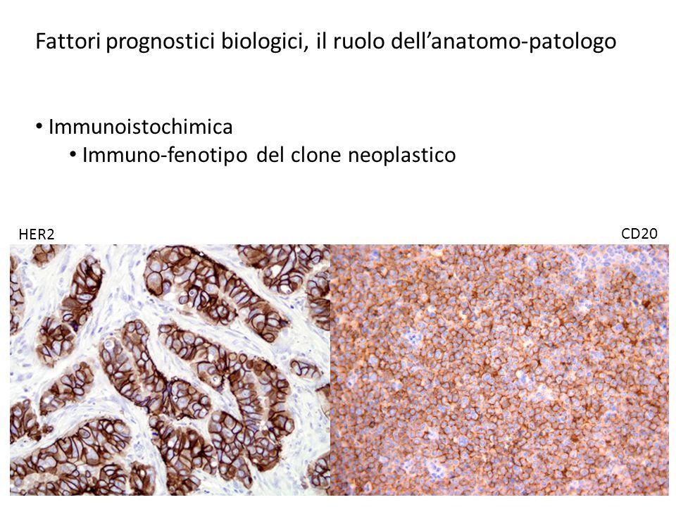 Fattori prognostici biologici, il ruolo dell'anatomo-patologo Immunoistochimica Immuno-fenotipo del clone neoplastico HER2 CD20