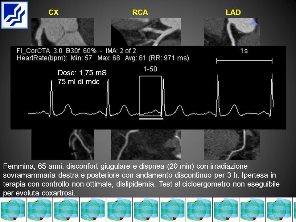Femmina, 65 anni: disconfort giugulare e dispnea (20 min) con irradiazione sovramammaria destra e posteriore con andamento discontinuo per 3 h.