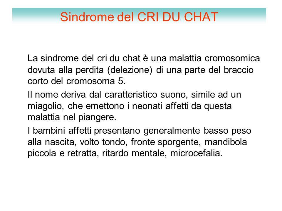 Sindrome del CRI DU CHAT La sindrome del cri du chat è una malattia cromosomica dovuta alla perdita (delezione) di una parte del braccio corto del cro