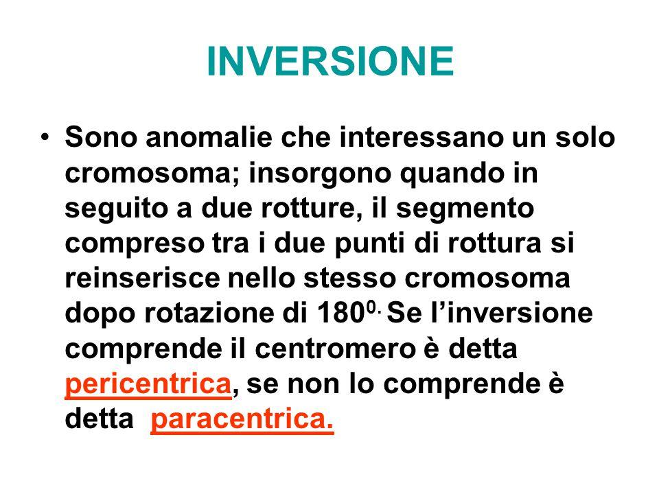 INVERSIONE Sono anomalie che interessano un solo cromosoma; insorgono quando in seguito a due rotture, il segmento compreso tra i due punti di rottura