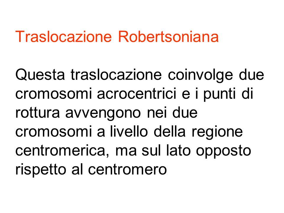 Traslocazione Robertsoniana Questa traslocazione coinvolge due cromosomi acrocentrici e i punti di rottura avvengono nei due cromosomi a livello della