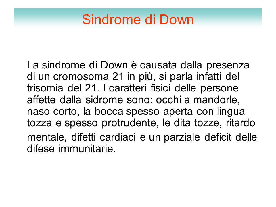 Sindrome di Down La sindrome di Down è causata dalla presenza di un cromosoma 21 in più, si parla infatti del trisomia del 21. I caratteri fisici dell