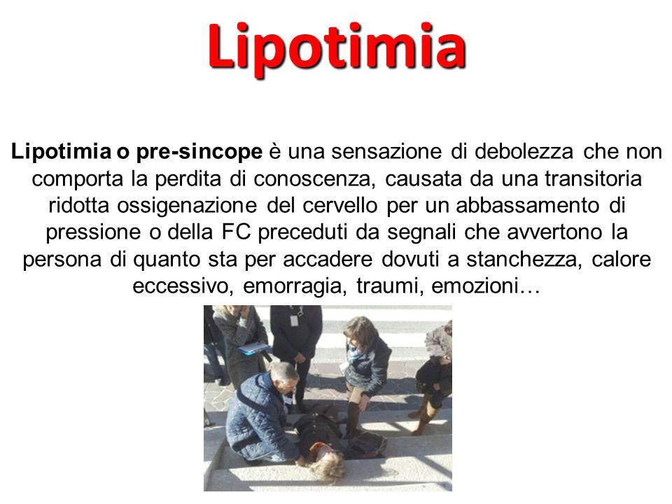 Lipotimia o pre-sincope è una sensazione di debolezza che non comporta la perdita di conoscenza, causata da una transitoria ridotta ossigenazione del
