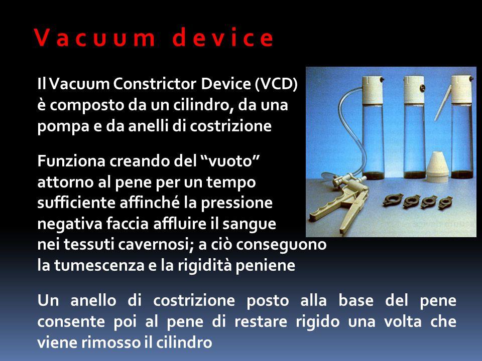 """V a c u u m d e v i c e Il Vacuum Constrictor Device (VCD) è composto da un cilindro, da una pompa e da anelli di costrizione Funziona creando del """"vu"""