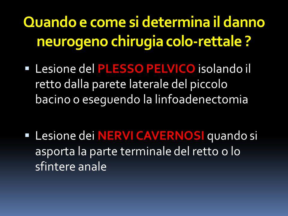 Lesione del PLESSO PELVICO isolando il retto dalla parete laterale del piccolo bacino o eseguendo la linfoadenectomia  Lesione dei NERVI CAVERNOSI