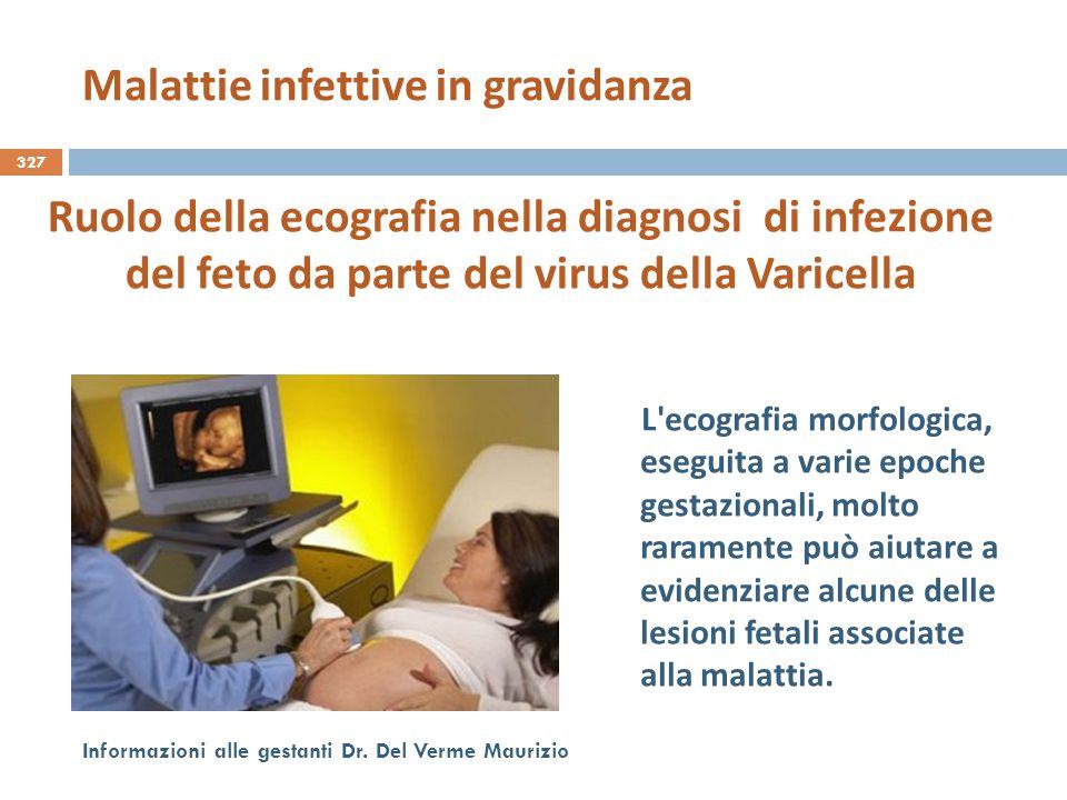 327 Informazioni alle gestanti Dr. Del Verme Maurizio Ruolo della ecografia nella diagnosi di infezione del feto da parte del virus della Varicella L'