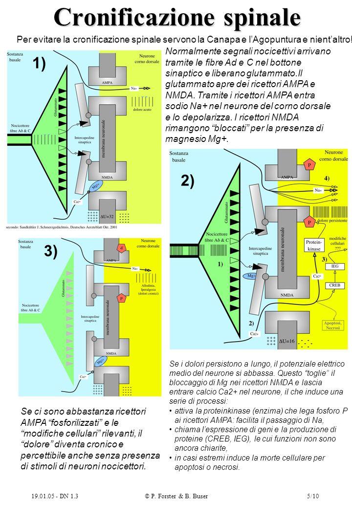19.01.05 - DN 1.3© P. Forster & B. Buser5/10 Cronificazione spinale Normalmente segnali nocicettivi arrivano tramite le fibre Ad e C nel bottone sinap