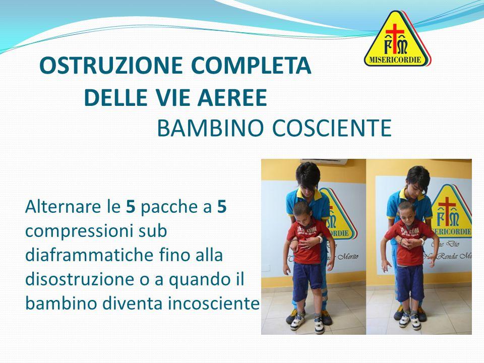 Alternare le 5 pacche a 5 compressioni sub diaframmatiche fino alla disostruzione o a quando il bambino diventa incosciente OSTRUZIONE COMPLETA DELLE