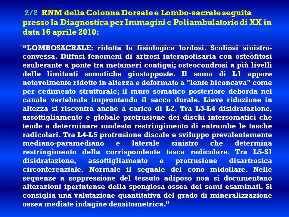 """2/2 RNM della Colonna Dorsale e Lombo-sacrale seguita presso la Diagnostica per Immagini e Poliambulatorio di XX in data 16 aprile 2010: """"LOMBOSACRALE"""