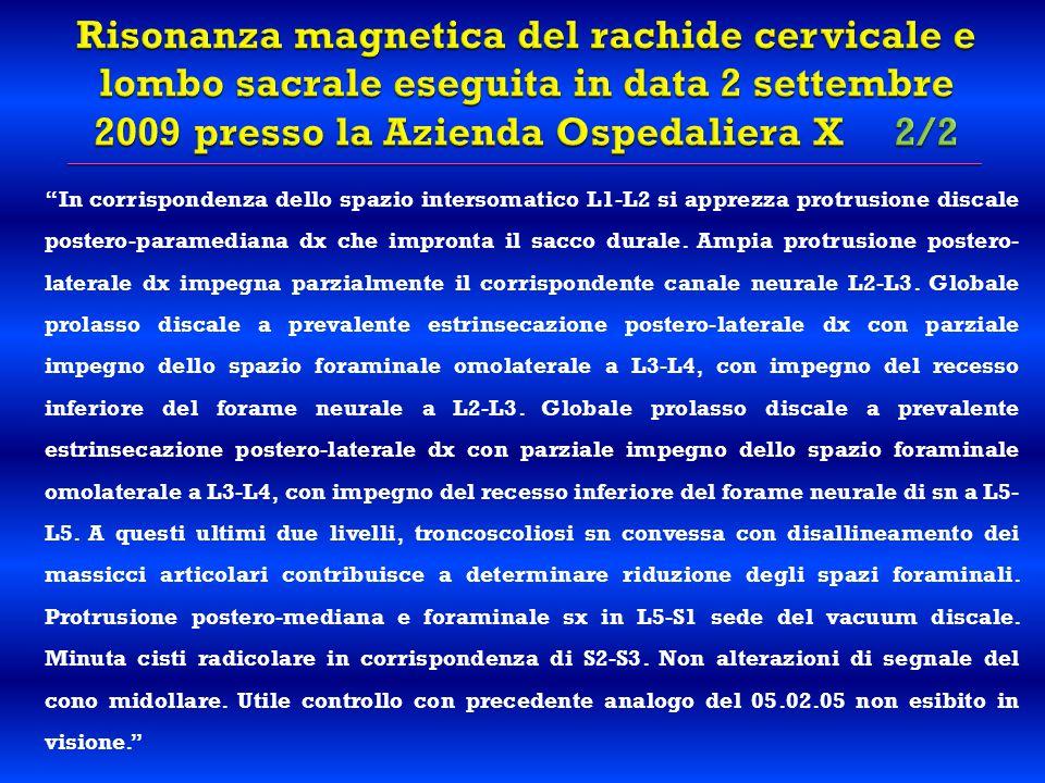 """""""In corrispondenza dello spazio intersomatico L1-L2 si apprezza protrusione discale postero-paramediana dx che impronta il sacco durale. Ampia protrus"""