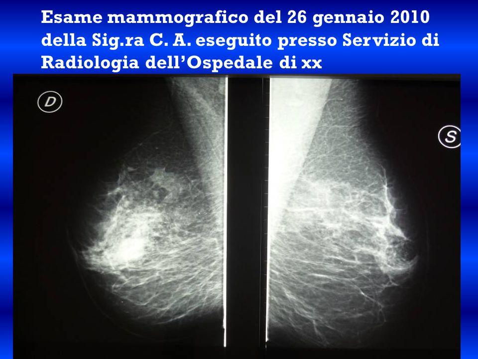 Esame mammografico del 26 gennaio 2010 della Sig.ra C. A. eseguito presso Servizio di Radiologia dell'Ospedale di xx