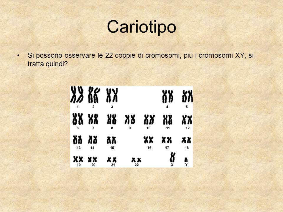 Cariotipo Si possono osservare le 22 coppie di cromosomi, più i cromosomi XY, si tratta quindi?