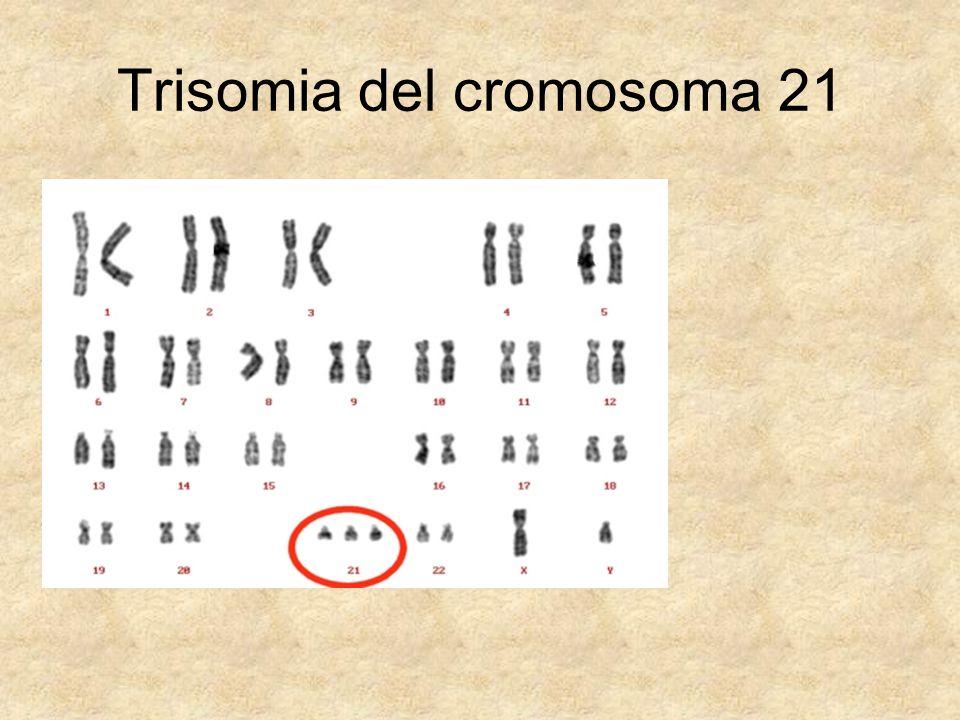 Trisomia del cromosoma 21