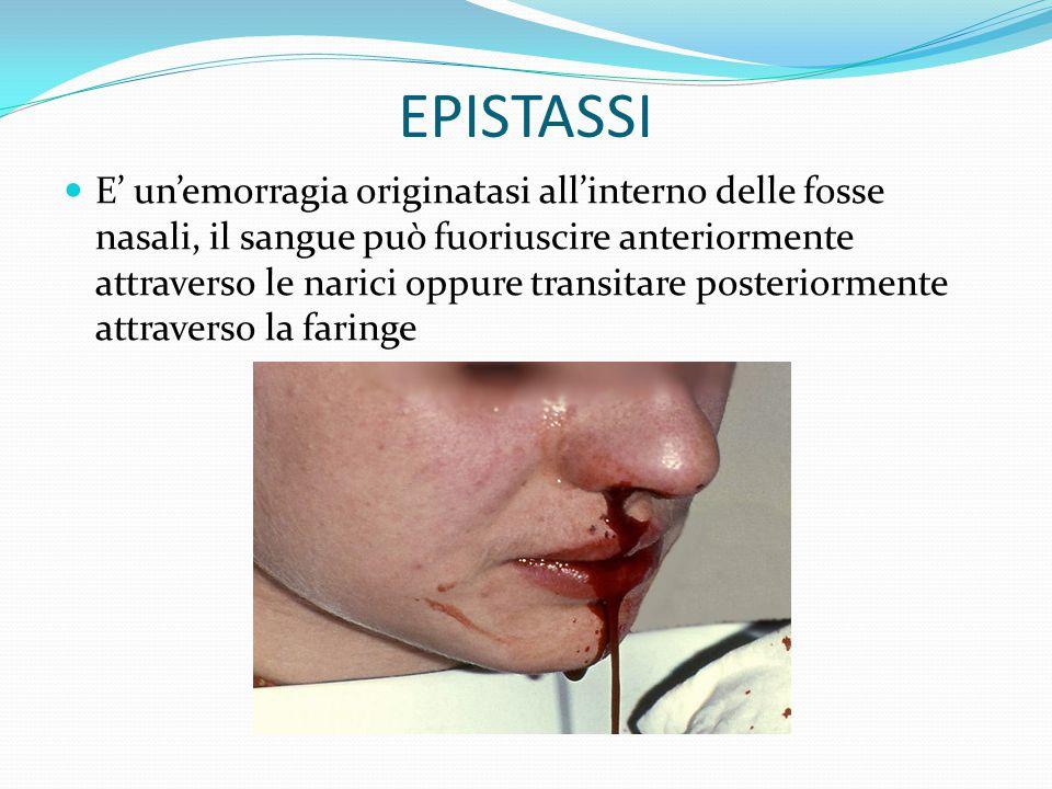EPISTASSI E' un'emorragia originatasi all'interno delle fosse nasali, il sangue può fuoriuscire anteriormente attraverso le narici oppure transitare posteriormente attraverso la faringe
