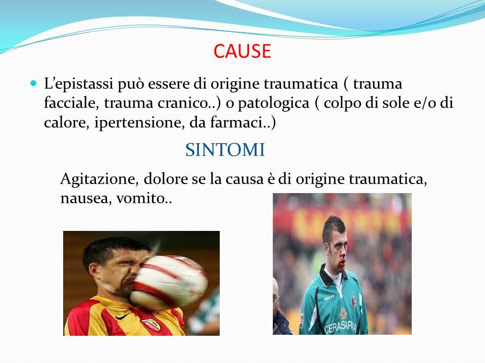 CAUSE L'epistassi può essere di origine traumatica ( trauma facciale, trauma cranico..) o patologica ( colpo di sole e/o di calore, ipertensione, da f