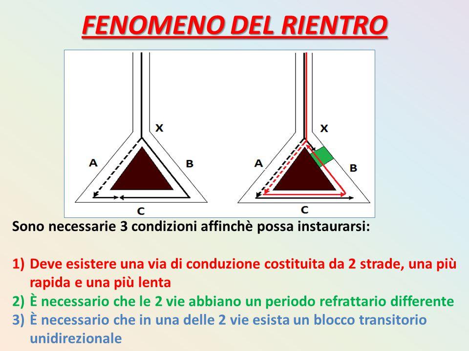 FENOMENO DEL RIENTRO Sono necessarie 3 condizioni affinchè possa instaurarsi: 1)Deve esistere una via di conduzione costituita da 2 strade, una più ra