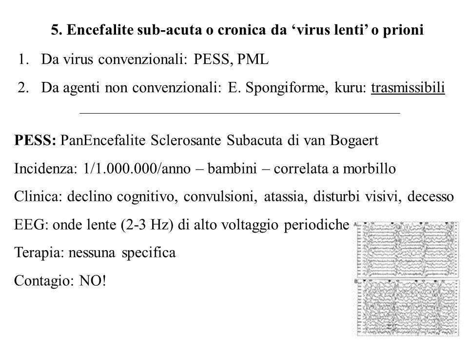 5. Encefalite sub-acuta o cronica da 'virus lenti' o prioni 1.Da virus convenzionali: PESS, PML 2.Da agenti non convenzionali: E. Spongiforme, kuru: t
