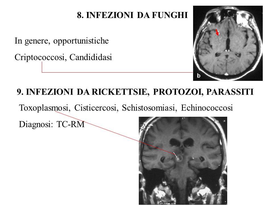 8. INFEZIONI DA FUNGHI In genere, opportunistiche Criptococcosi, Candididasi 9. INFEZIONI DA RICKETTSIE, PROTOZOI, PARASSITI Toxoplasmosi, Cisticercos