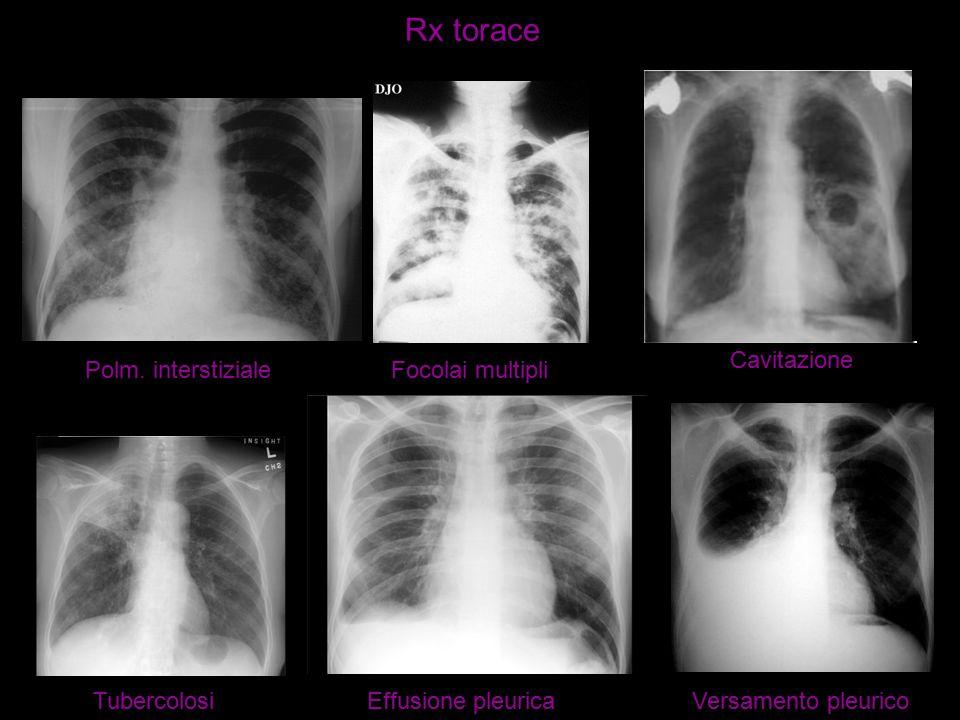 Rx torace Polm. interstizialeFocolai multipli Cavitazione TubercolosiEffusione pleuricaVersamento pleurico