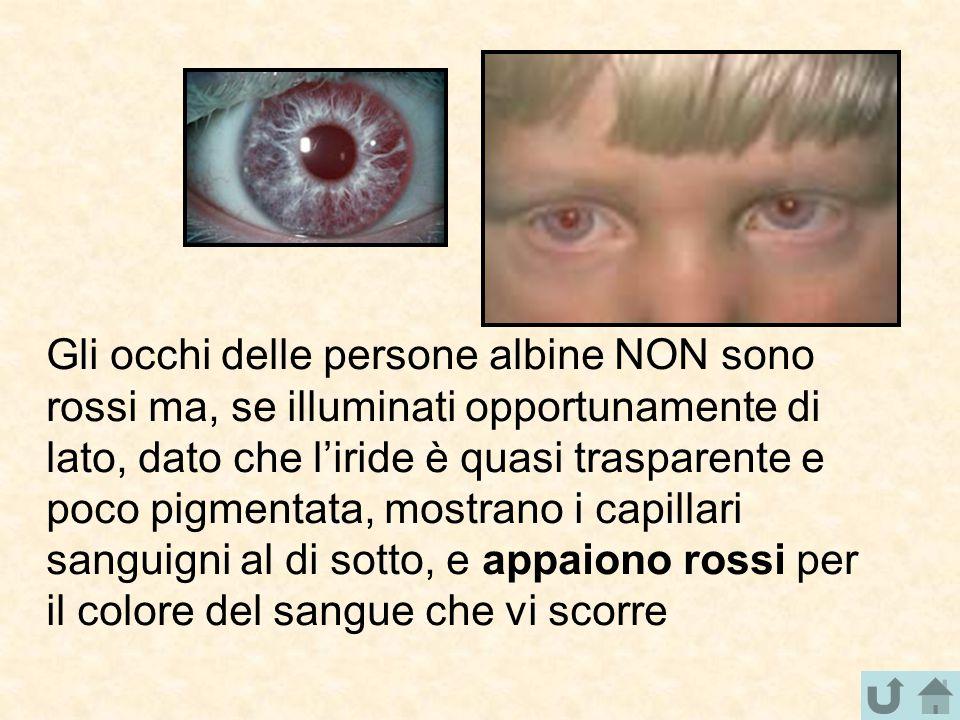 Gli occhi delle persone albine NON sono rossi ma, se illuminati opportunamente di lato, dato che l'iride è quasi trasparente e poco pigmentata, mostra