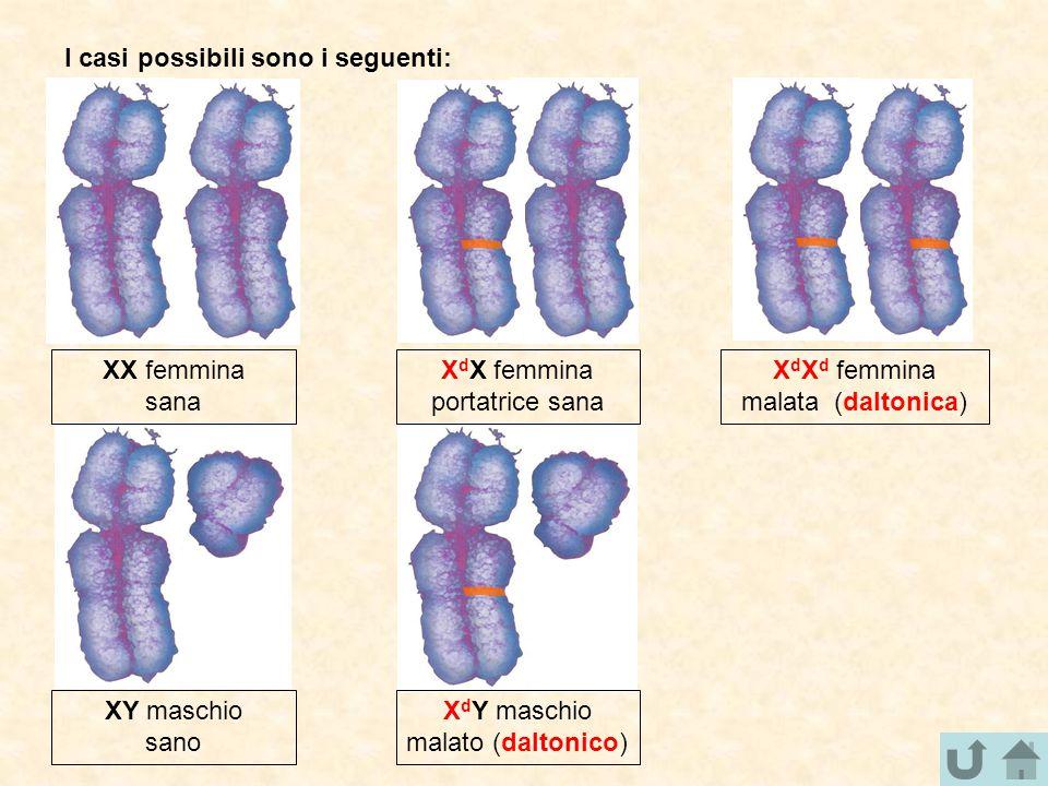 I casi possibili sono i seguenti: XX femmina sana X d Y maschio malato (daltonico) XY maschio sano X d X femmina portatrice sana X d X d femmina malat