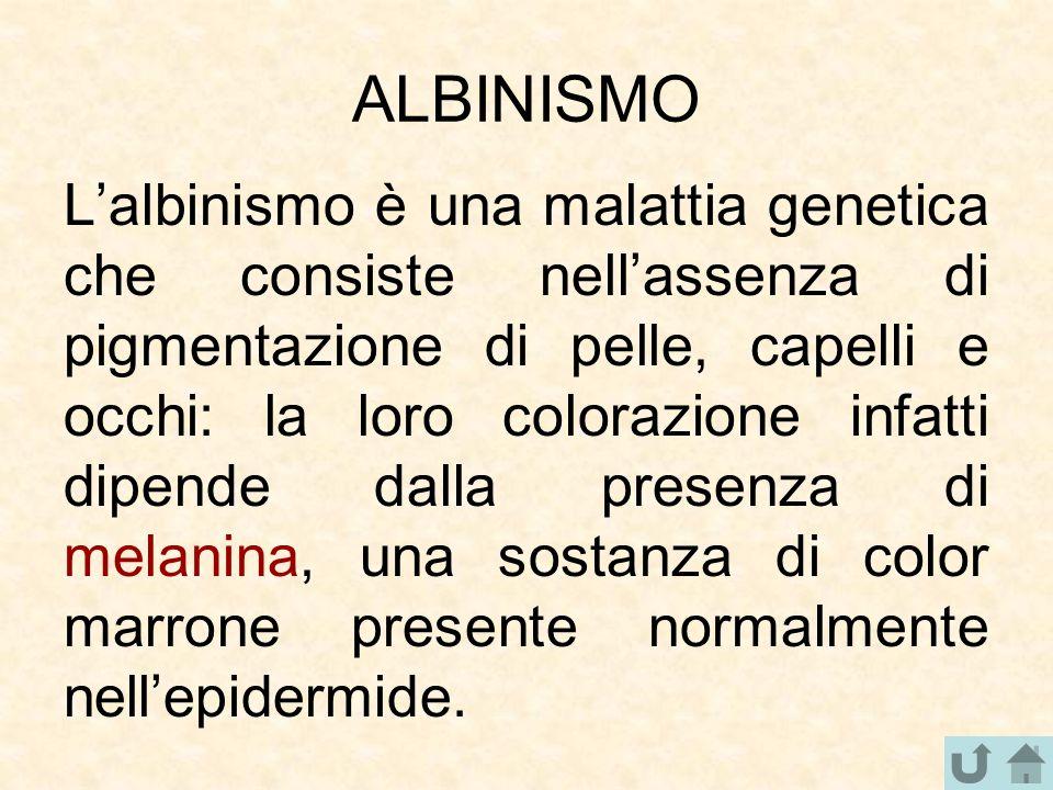 ALBINISMO L'albinismo è una malattia genetica che consiste nell'assenza di pigmentazione di pelle, capelli e occhi: la loro colorazione infatti dipend
