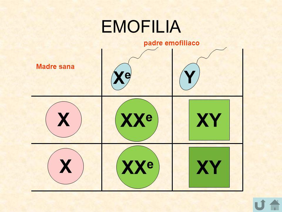 EMOFILIA X X XeXe Y XX e XY XX e padre emofiliaco Madre sana