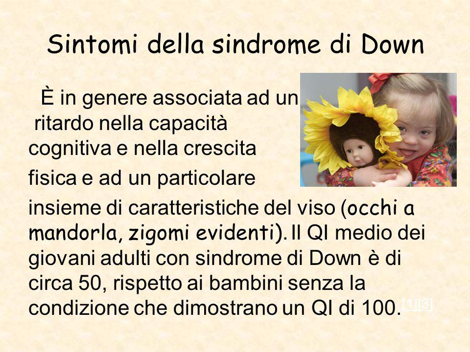 Sintomi della sindrome di Down È in genere associata ad un ritardo nella capacità cognitiva e nella crescita fisica e ad un particolare insieme di car