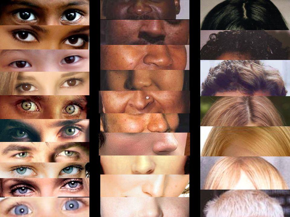 ALBINISMO Negli albini la melanina è assente sia nei capelli, che negli occhi, che nella pelle: fratelli e sorelle albini